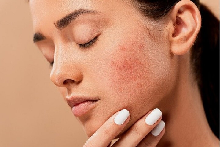 Skin Causes due to Stress